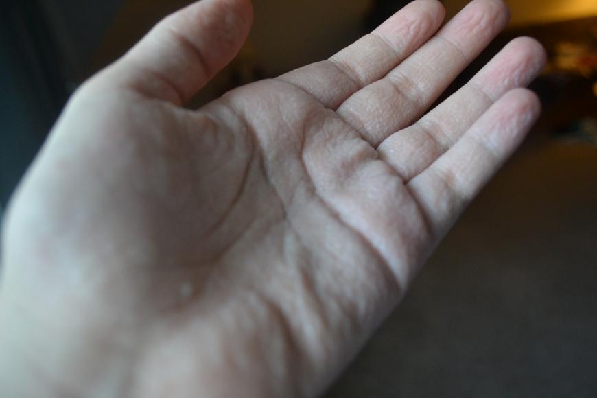 something in the air makes me hands like a grandmas. freaky!